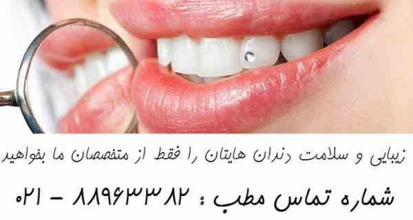 بهترین متخصص لمینیت دندانپزشک زیبایی