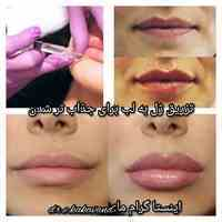 متخصص پوست مو وزیبایی دکتر الهام کاکاوند