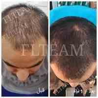 درمان تضمین شده جلوگیری از ریزش مو و رویش مجدد مو